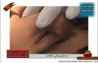 اموزش پزشکي: دندانپزشکی اطفال