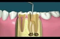 دندان - چگونگی بازسازی دندون به روش حرفه ای