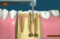 اموزش پزشکي: عصب کشی دندان