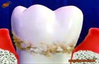 اموزش پزشکي: جرم دندان