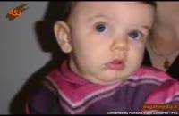 تورتیکولی یا کجی گردن نوزاد