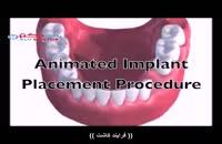 نظر دکتر مریم ابراهیمی درباره ایمپلنت دندانی