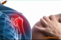درد شانه چطور بوجود می اید