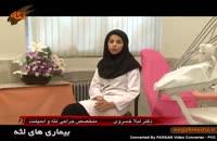 اموزش پزشکي: بیماری لثه